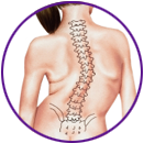 Adult Kyphosis-Types and Causes