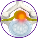 Cervical Disc Protrusion