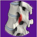 Facet joint arthritis