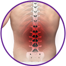 Mid-back Pain